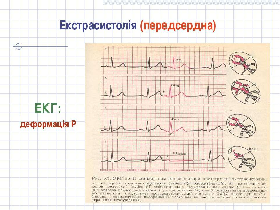 Екстрасистолія (передсердна) ЕКГ: деформація Р