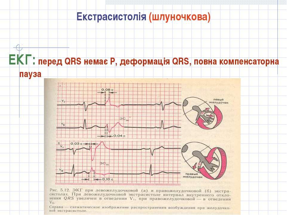Екстрасистолія (шлуночкова) ЕКГ: перед QRS немає Р, деформація QRS, повна ком...