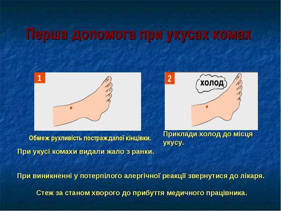 Перша допомога при укусах комах Обмеж рухливість постраждалої кінцівки. При у...