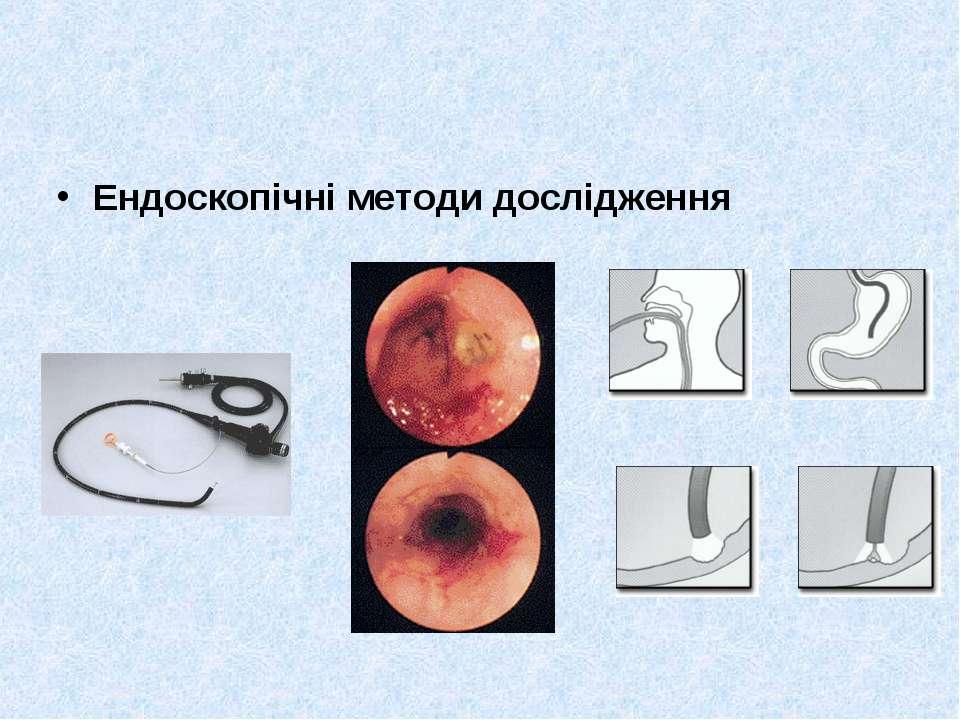 Ендоскопічні методи дослідження