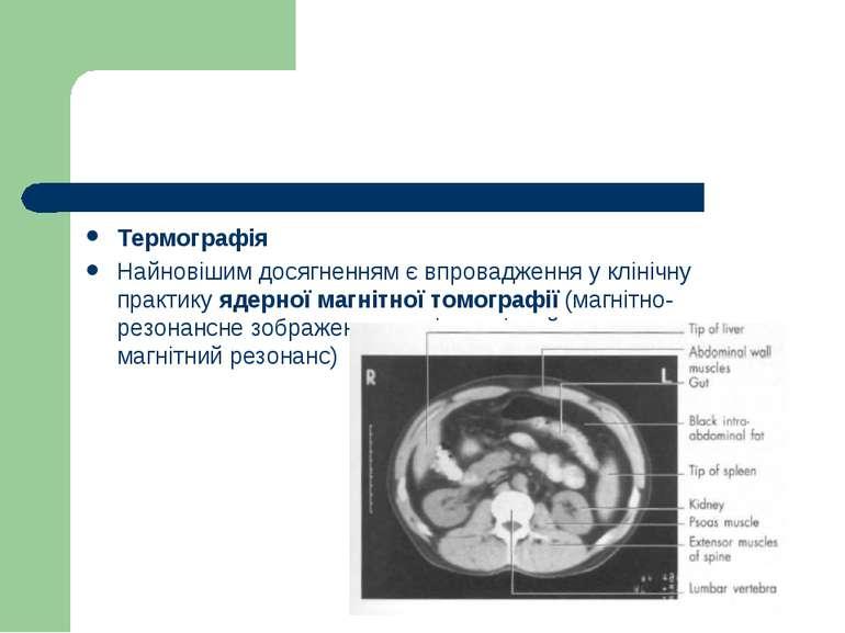 Термографія Найновішим досягненням є впровадження у клінічну практику ядерної...