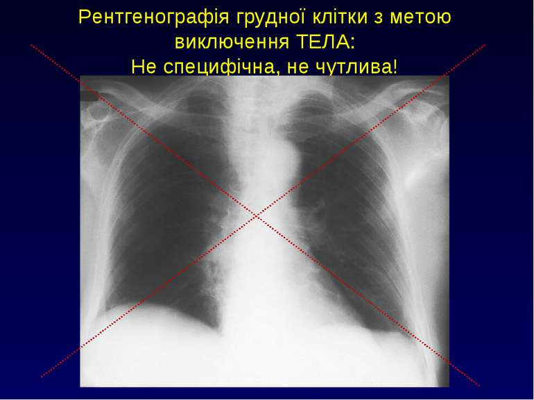 Рентгенографія грудної клітки з метою виключення ТЕЛА: Не специфічна, не чутл...