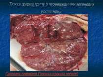 """Тяжка форма грипу з переважанням легеневих ускладнень Грипозна пневмонія (""""ве..."""