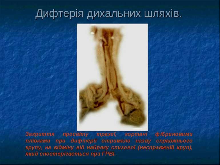 Дифтерія дихальних шляхів. Закриття просвіту трахеї, гортані фібриновими плів...