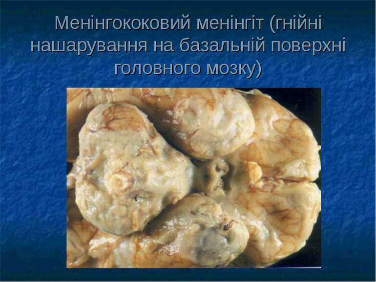 Менінгококовий менінгіт (гнійні нашарування на базальній поверхні головного м...