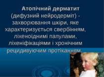 Атопічний дерматит (дифузний нейродерміт) - захворювання шкіри, яке характери...