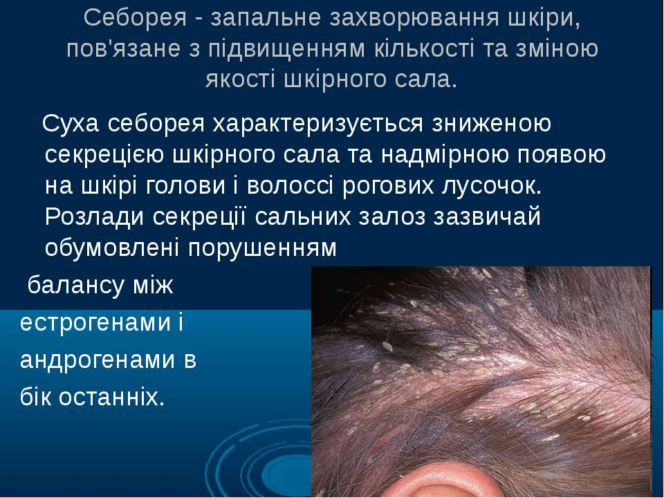 Себорея - запальне захворювання шкіри, пов'язане з підвищенням кількості та з...