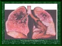 Рис.3. Геморагічний набряк легенів
