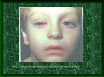 Рис. Аденовірусна інфекція. Плівчастий кон'юнктивіт