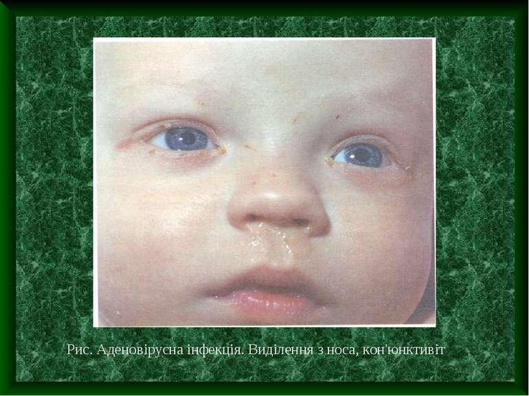 Рис. Аденовірусна інфекція. Виділення з носа, кон'юнктивіт