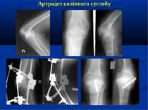 Артродез колінного суглобу