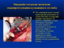 Операція тотальне цементне ендопротезування кульшового суглоба По зовнішній м...