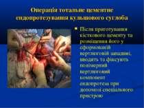 Операція тотальне цементне ендопротезування кульшового суглоба Після приготув...