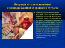Операція тотальне цементне ендопротезування кульшового суглоба Шилом розкрива...