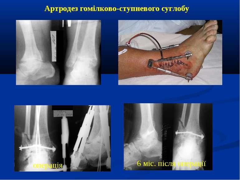 Артродез гомілково-ступневого суглобу 6 міс. після операції операція