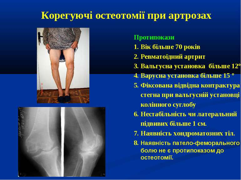 Корегуючі остеотомії при артрозах Протипокази 1. Вік більше 70 років 2. Ревма...