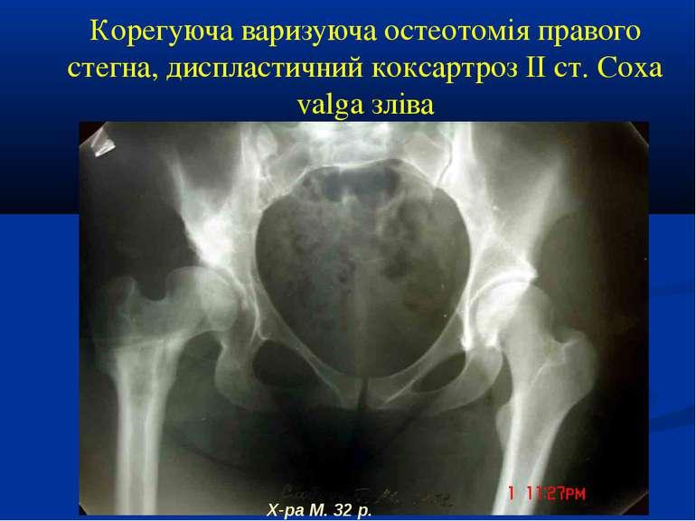 Корегуюча варизуюча остеотомія правого стегна, диспластичний коксартроз ІІ ст...