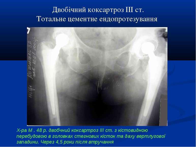 Двобічний коксартроз ІІІ ст. Тотальне цементне ендопротезування Х-ра М . 48 р...