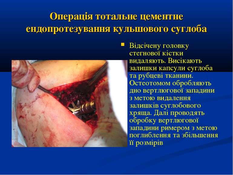 Операція тотальне цементне ендопротезування кульшового суглоба Відсічену голо...