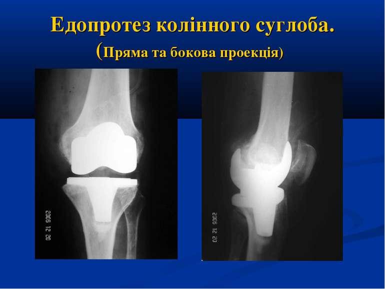 Едопротез колінного суглоба. (Пряма та бокова проекція)