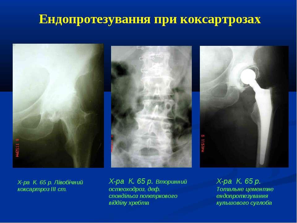 Ендопротезування при коксартрозах Х-ра К. 65 р. Лівобічний коксартроз ІІІ ст....