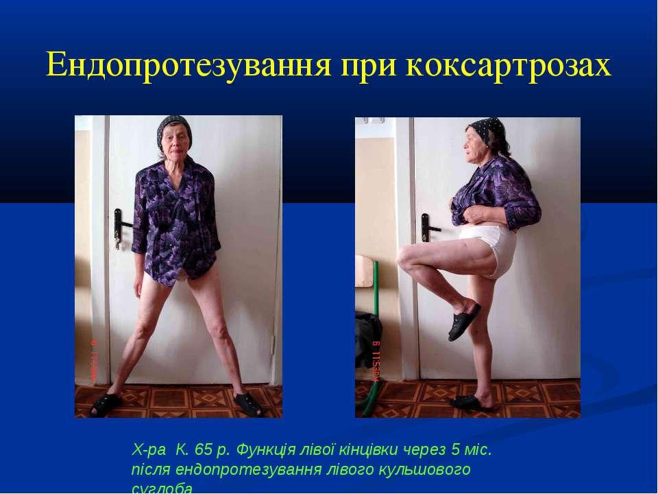 Ендопротезування при коксартрозах Х-ра К. 65 р. Функція лівої кінцівки через ...