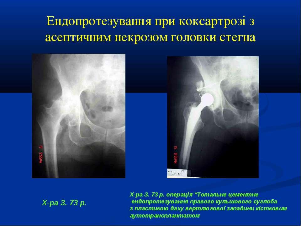 Ендопротезування при коксартрозі з асептичним некрозом головки стегна Х-ра З....