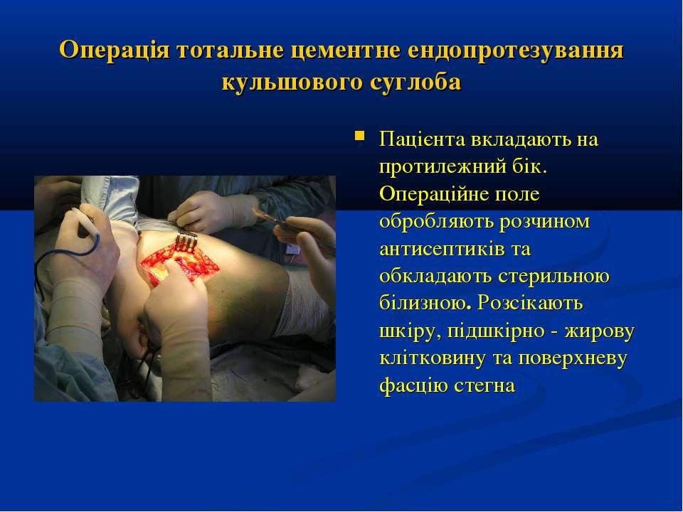 Операція тотальне цементне ендопротезування кульшового суглоба Пацієнта вклад...