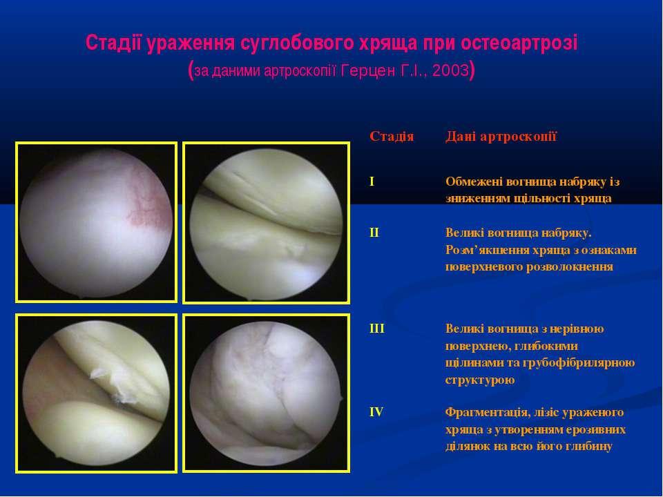 Стадії ураження суглобового хряща при остеоартрозі (за даними артроскопії Гер...