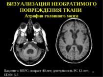 Пациент с ВПРС; возраст 40 лет; длительность РС 12 лет; EDSS: 5,5 ВИЗУАЛИЗАЦИ...