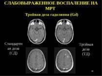 СЛАБОВЫРАЖЕННОЕ ВОСПАЛЕНИЕ НА МРТ Тройная доза гадолиния (Gd) *
