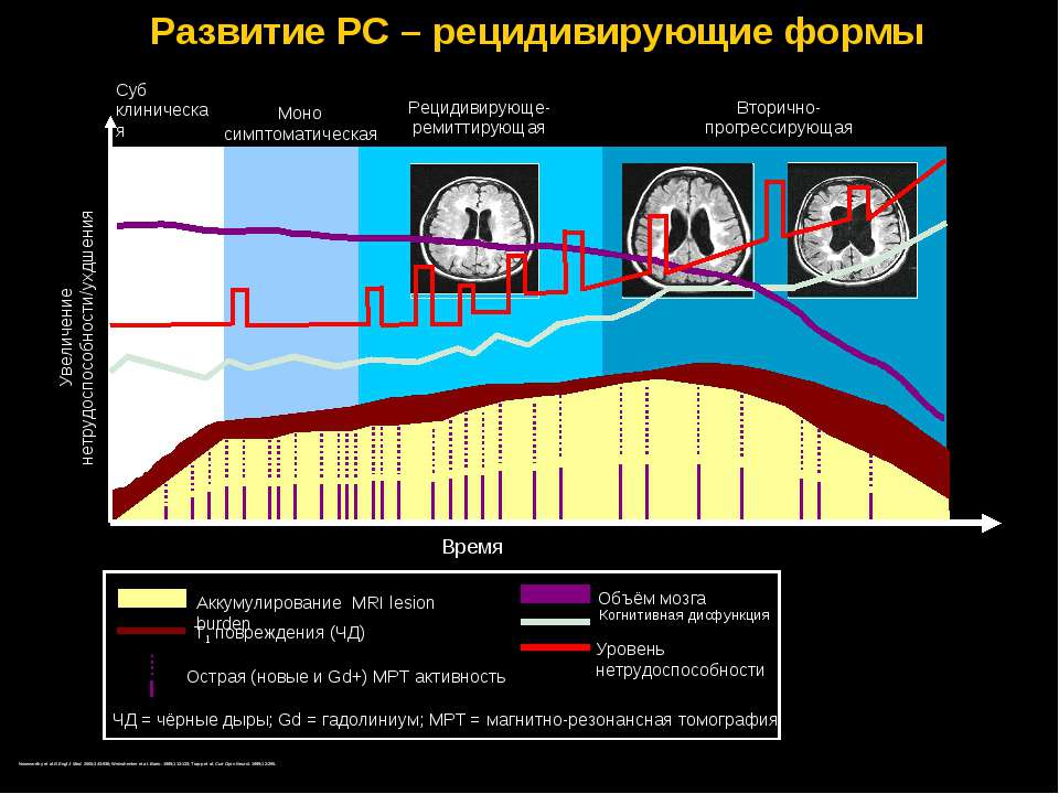 Развитие РС – рецидивирующие формы Увеличение нетрудоспособности/ухдшения ЧД ...