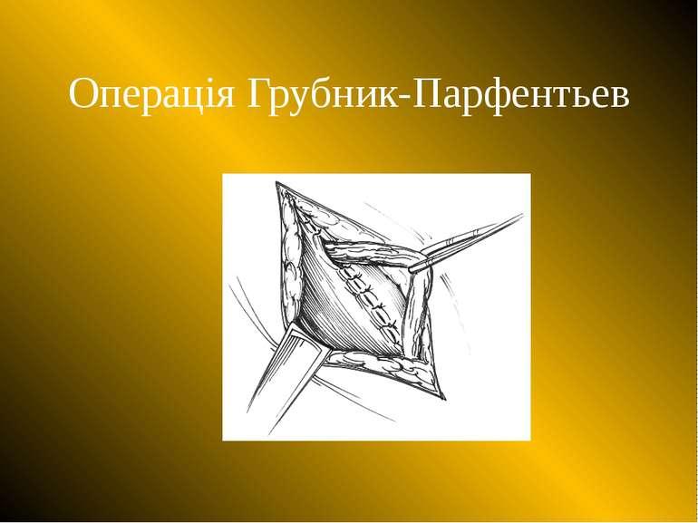 Операція Грубник-Парфентьев