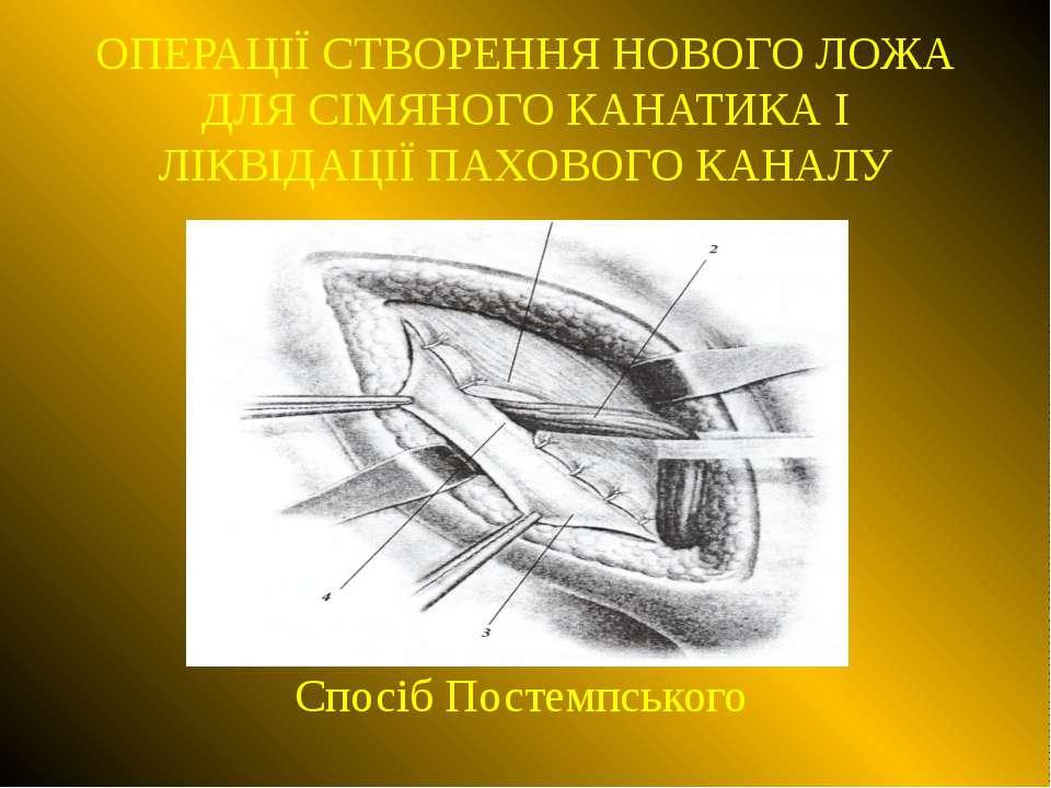 ОПЕРАЦІЇ СТВОРЕННЯ НОВОГО ЛОЖА ДЛЯ СІМЯНОГО КАНАТИКА І ЛІКВІДАЦІЇ ПАХОВОГО КА...