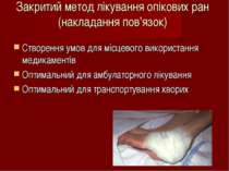 Закритий метод лікування опікових ран (накладання пов'язок) Створення умов дл...