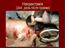 Некректомія (2ий день після травми)