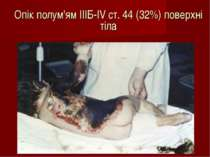 Опік полум'ям IIIБ-IV ст. 44 (32%) поверхні тіла