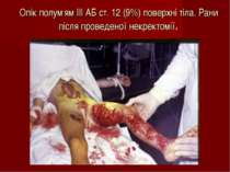 Опік полум,ям ІІІ АБ ст. 12 (9%) поверхні тіла. Рани після проведеної некрект...