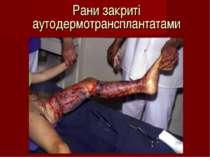 Рани закриті аутодермотрансплантатами