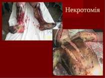 Некротомія