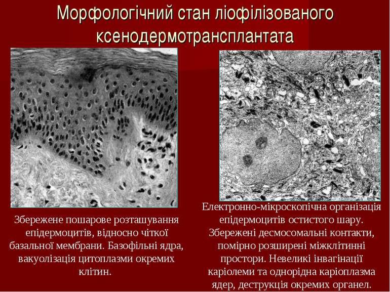 Морфологічний стан ліофілізованого ксенодермотрансплантата Збережене пошарове...