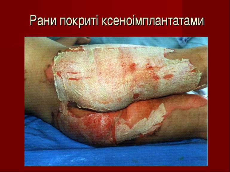 Рани покриті ксеноімплантатами