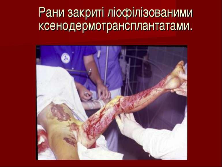 Рани закриті ліофілізованими ксенодермотрансплантатами.