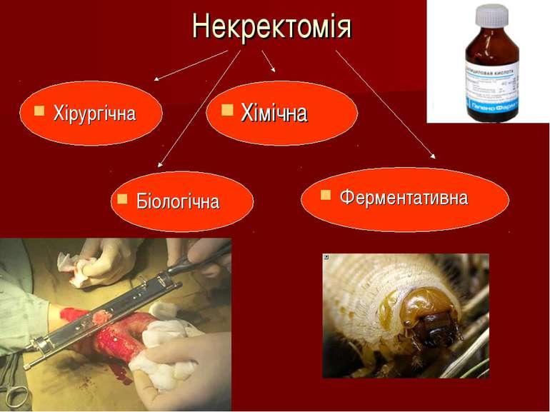 Некректомія Хірургічна Хімічна Біологічна Ферментативна