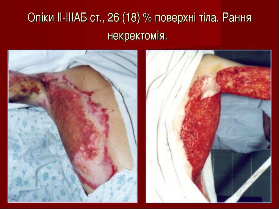 Опіки ІІ-ІІІАБ ст., 26 (18) % поверхні тіла. Рання некректомія.