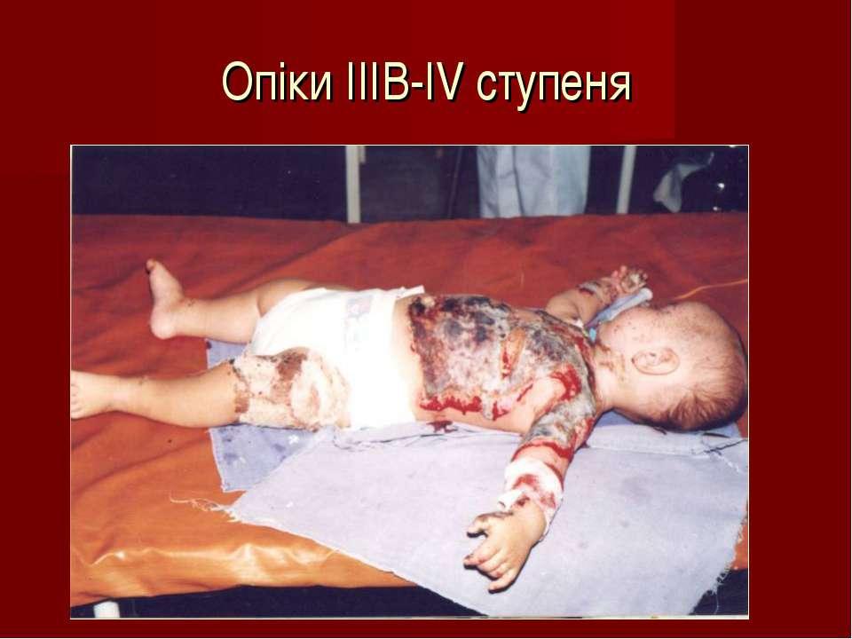 Опіки IIIB-IV ступеня