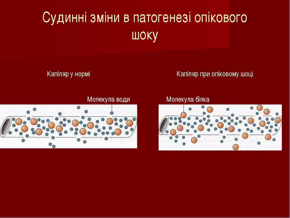 Капіляр у нормі Капіляр при опіковому шоці Молекула води Молекула білка Судин...