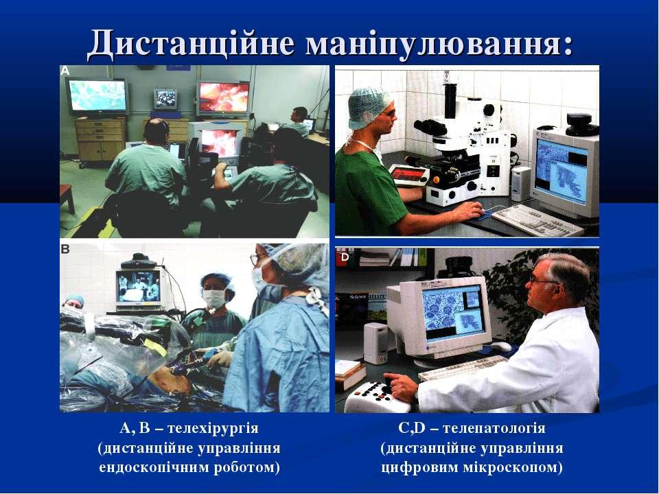 Дистанційне маніпулювання: А, В – телехірургія (дистанційне управління ендоск...