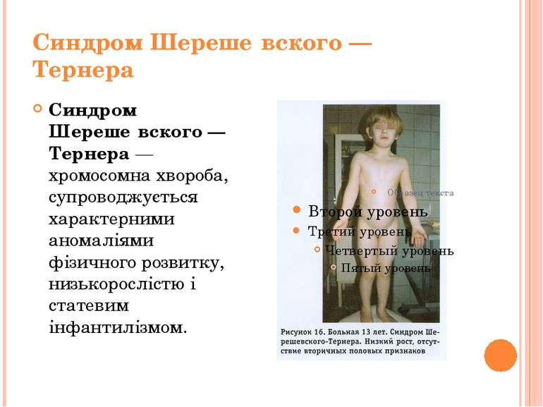 Синдром Шереше вского— Тернера Синдром Шереше вского— Тернера— хромосомна ...