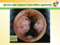 фото рак трахеї (наслідки куріння)